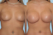 kimberly short plastic surgery body before and after photo indianapolis