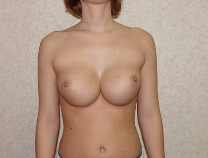 Breast Implant Revision Before & After Patient #827