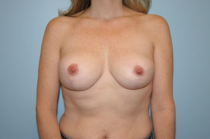 Breast Reduction Before & After Patient #875