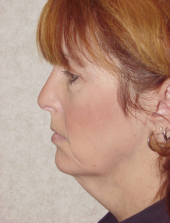 Neck Lift Before & After Patient #943