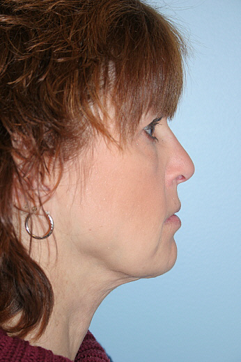 Neck Lift Before & After Patient #952