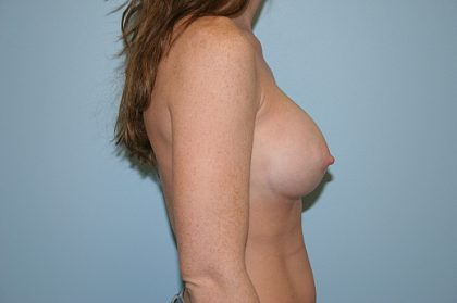 Breast Augmentation Before & After Patient #817