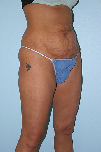 Tummy Tuck Before & After Patient #777