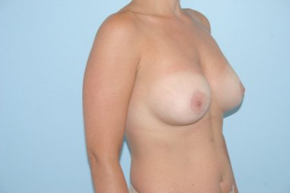 Breast Lift Before & After Patient #853
