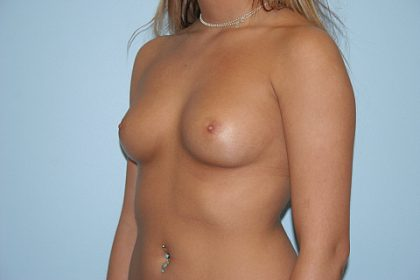 Breast Augmentation Before & After Patient #676