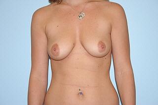 Breast Augmentation Before & After Patient #803