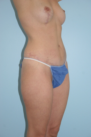 Tummy Tuck Before & After Patient #770