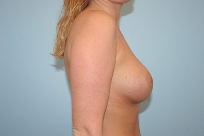 Breast Augmentation Before & After Patient #810