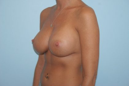 Breast Implant Revision Before & After Patient #834
