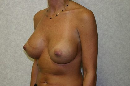 Breast Implant Revision Before & After Patient #841