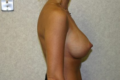 Breast Implant Revision Before & After Patient #824