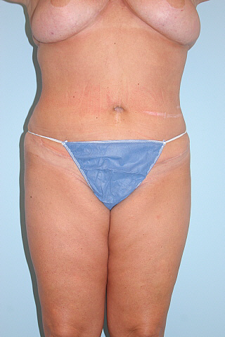 Tummy Tuck Before & After Patient #794