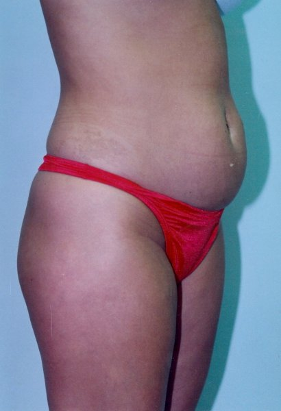 Tummy Tuck Before & After Patient #758