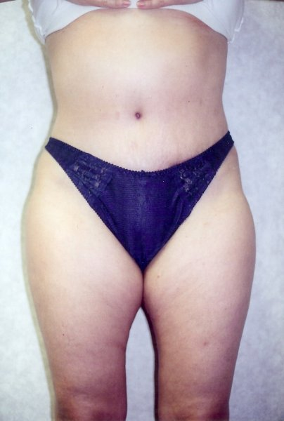 Tummy Tuck Before & After Patient #784