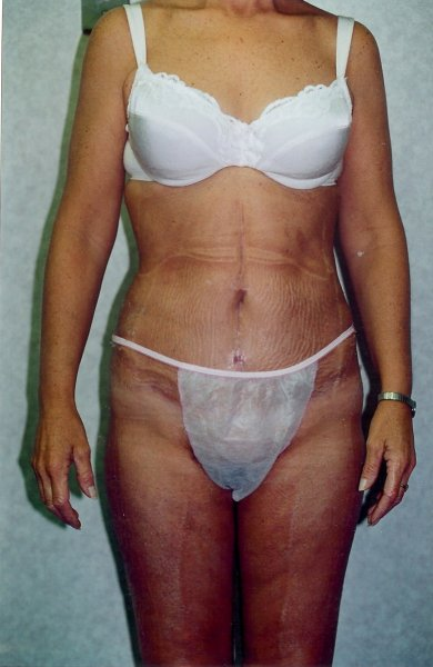 Tummy Tuck Before & After Patient #789