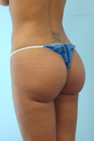 Brazilian Butt Lift Before & After Patient #682