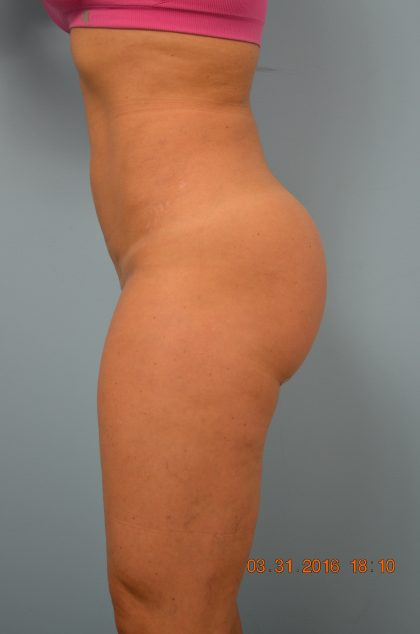 Brazilian Butt Lift Before & After Patient #687