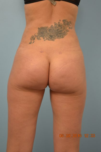 Brazilian Butt Lift Before & After Patient #692