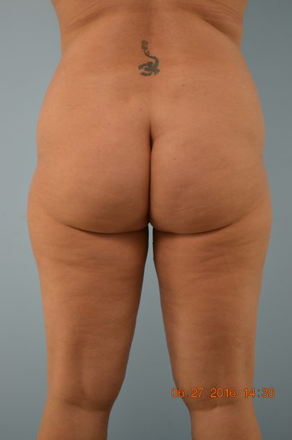 Brazilian Butt Lift Before & After Patient #697