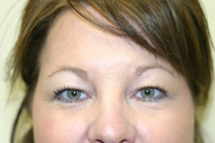 Brow Lift Before & After Patient #915