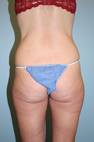 Brazilian Butt Lift Before & After Patient #703