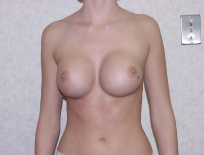 Breast Implant Revision Before & After Patient #846