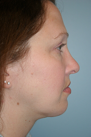 Chin Augmentation Before & After Patient #920