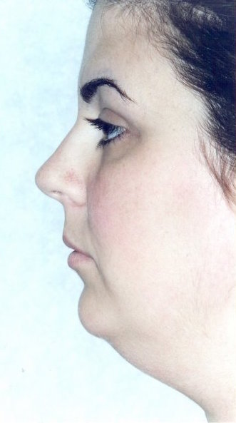 Chin Augmentation Before & After Patient #957