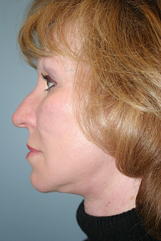 Facelift Before & After Patient #929