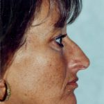 Rhinoplasty Before & After Patient #907
