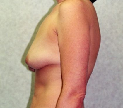 Breast Lift Before & After Patient #868