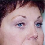Brow Lift Before & After Patient #926