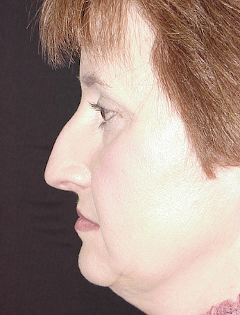 Rhinoplasty Before & After Patient #910
