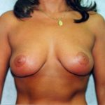 Breast Lift Before & After Patient #863