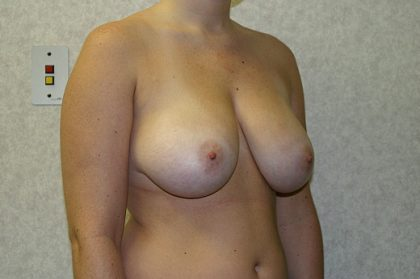 Breast Reduction Before & After Patient #892