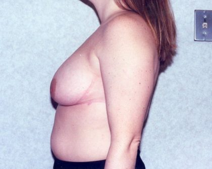 Breast Reduction Before & After Patient #893