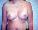 Breast Lift Before & After Patient #860