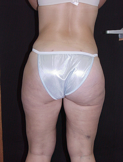 Liposuction Before & After Patient #733