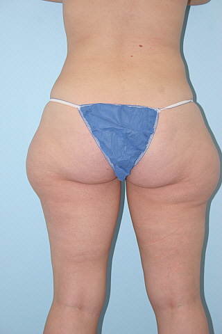 Liposuction Before & After Patient #755
