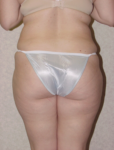 Liposuction Before & After Patient #747