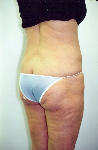 Liposuction Before & After Patient #750