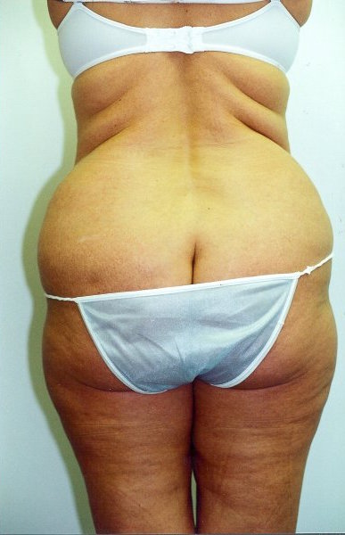 Liposuction Before & After Patient #742