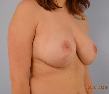 Breast Reduction Before & After Patient #1542