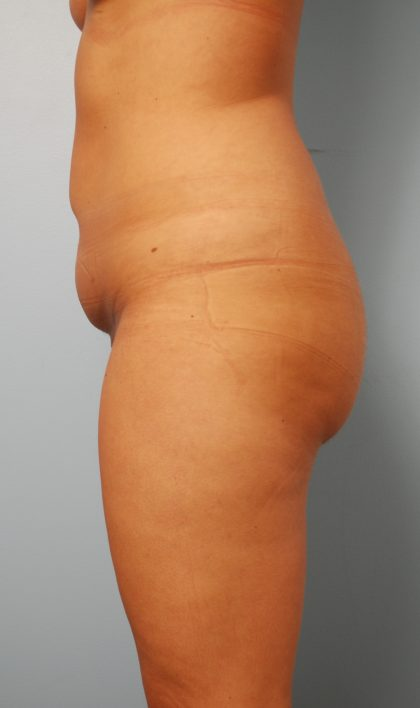 Liposuction Before & After Patient #1563