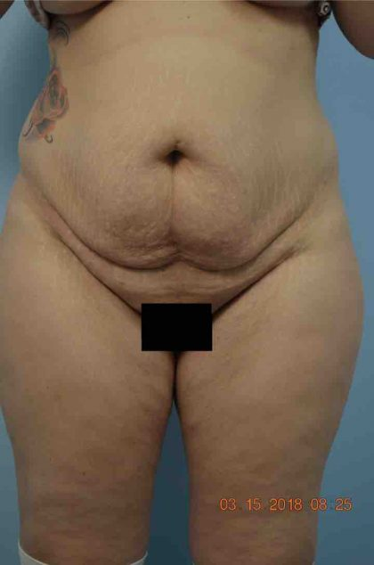 Tummy Tuck Before & After Patient #1669