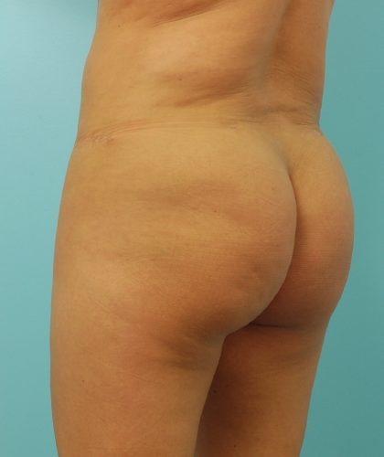 Brazilian Butt Lift Before & After Patient #1615