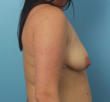 Breast Augmentation Before & After Patient #1607
