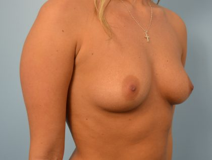 Breast Augmentation Before & After Patient #1528