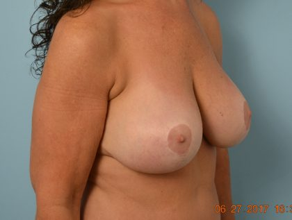 Breast Augmentation Before & After Patient #1593