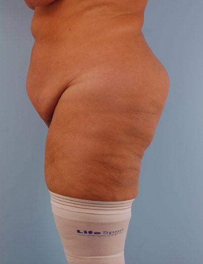 Tummy Tuck Before & After Patient #1664
